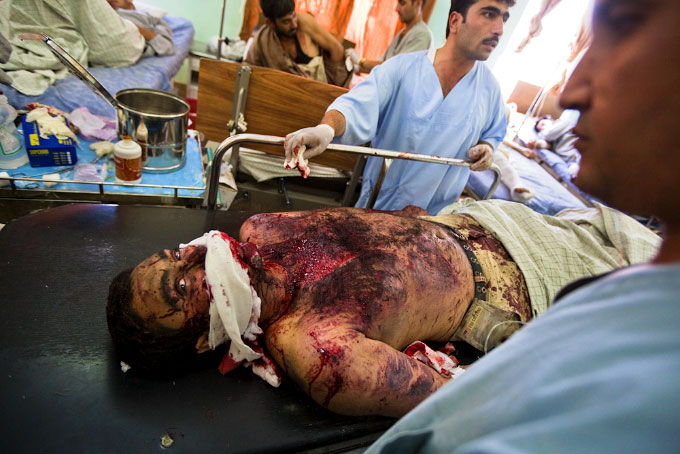 A victim of a car bomb blast on Jalalabad road in Kabul is helped at at Wazir Akbar Khan Hospital on August 18.