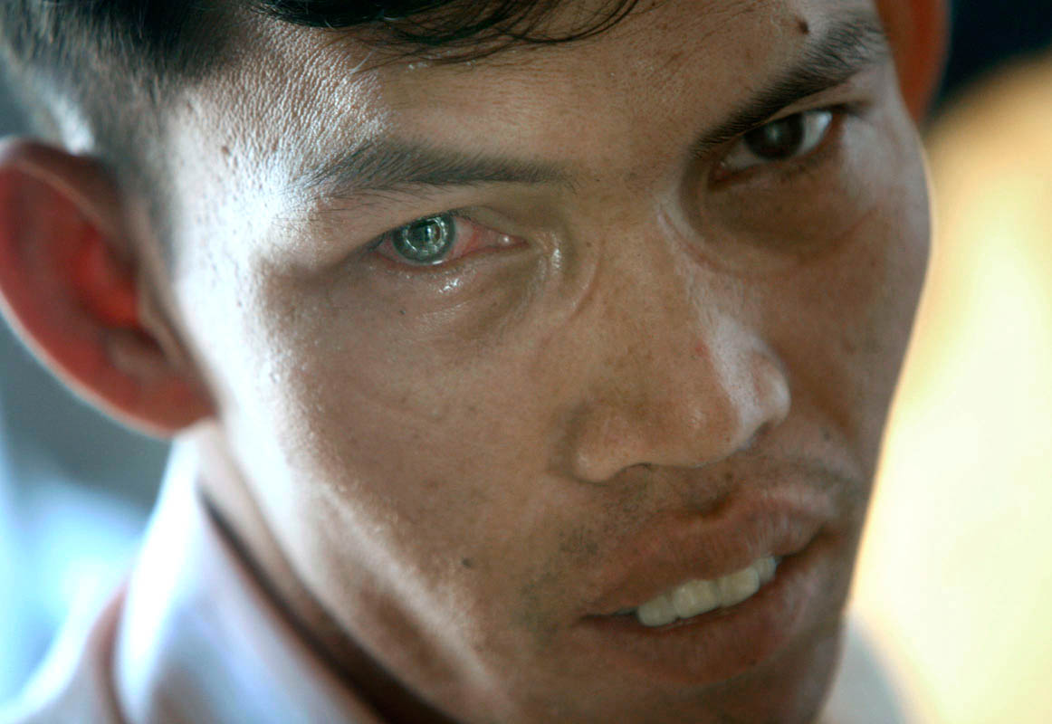 Finally, a smile of relief for Sry Loy, after the completion of his first post-op exam, at Preah Ang Duong Hospital, December 12, 2007. A perfect ring of stitches surrounds his new cornea. The stitches will be removed shortly, and his vision which is now blurred, will gradually improve.