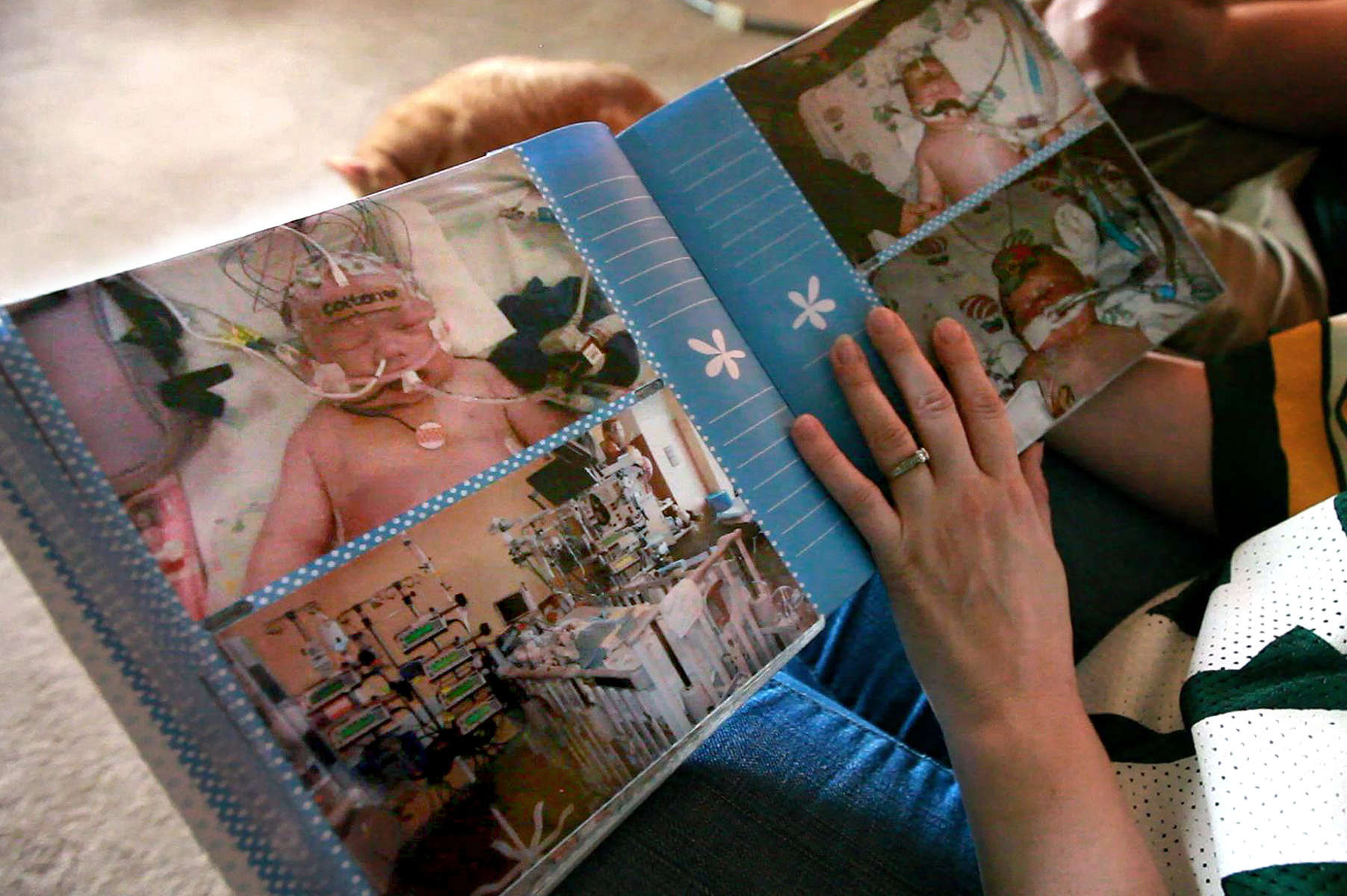 Colton's mother Karen looks at a photo album from his first weeks of life, filled with heartbreaking photos of a very ill child. Less than a day after being discharged from the hospital following his birth, Colton was lethargic and blood began pouring from his nose. His heart stopped and his body was flooded with toxic ammonia levels. Doctor's didn't think Colton could survive, but tried a cooling technique to protect his brain and heart while he underwent dialysis. Had the hospital followed procedure, Colton's metabolic disorder could have been diagnosed before it threatened his life.