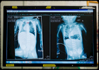 The post [left] and pre [right] x-rays of Charley's chest. The lungs, though underdeveloped, are now in the correct locations.